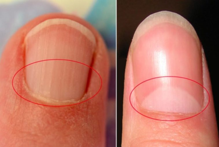 What does the half-moon shape on your nails mean? – Health & Wellness