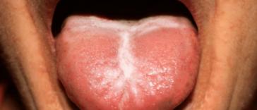 Thrush symptoms